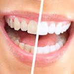 come avere i denti bianchi