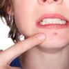 Acne : cause e rimedi naturali