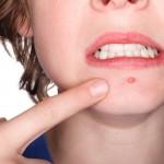 brufoli acne